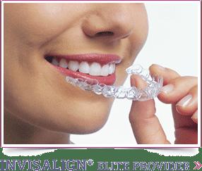 Invisalign Carlyn Phucas Orthodontics